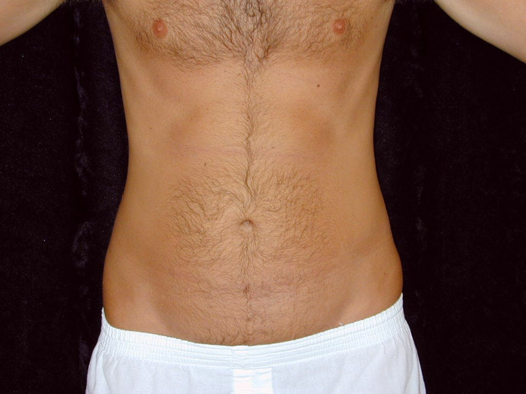 Liposuction Gallery - Patient 39245500 - Image 1
