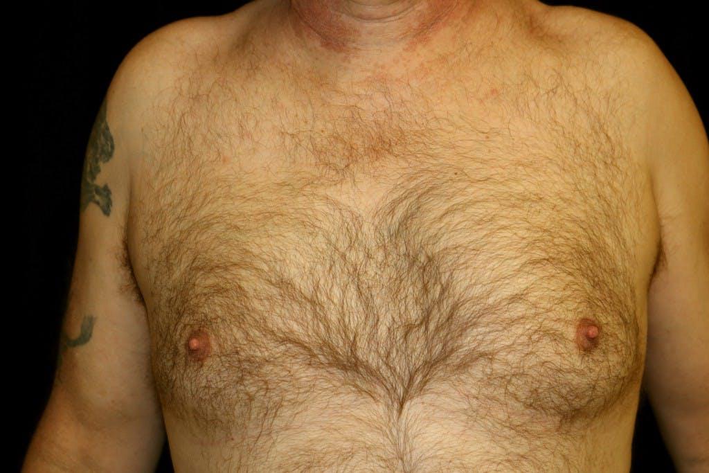 Gynecomastia Gallery - Patient 39245501 - Image 1