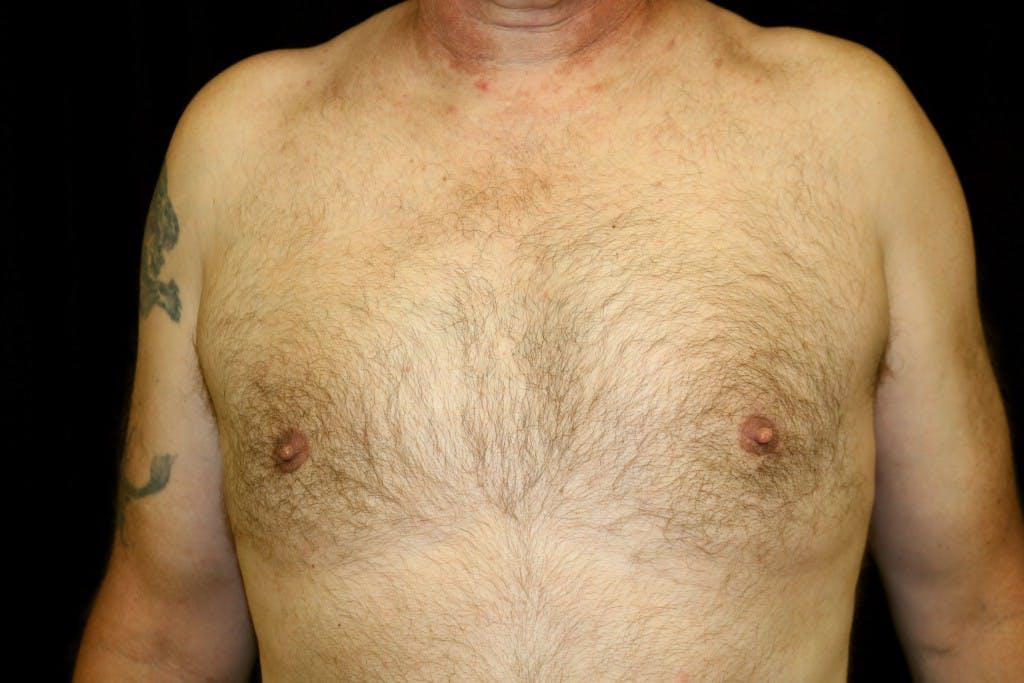 Gynecomastia Gallery - Patient 39245501 - Image 2