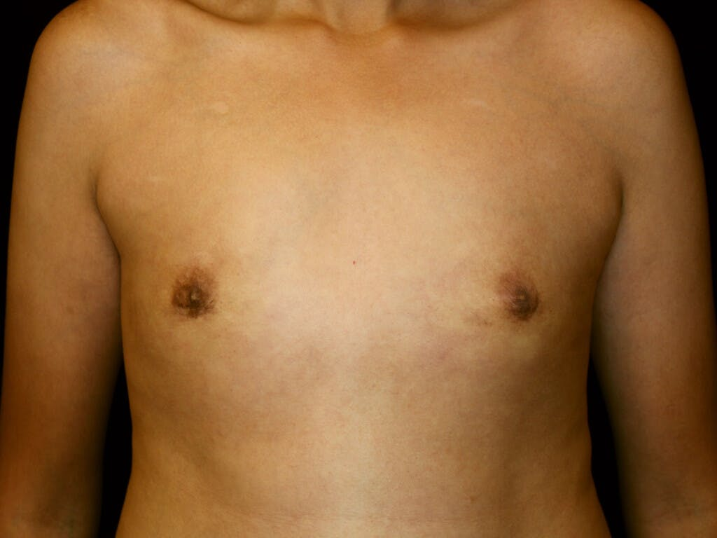 FTM Surgery Gallery - Patient 39245502 - Image 2
