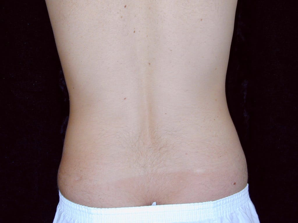 Liposuction Gallery - Patient 39245500 - Image 5