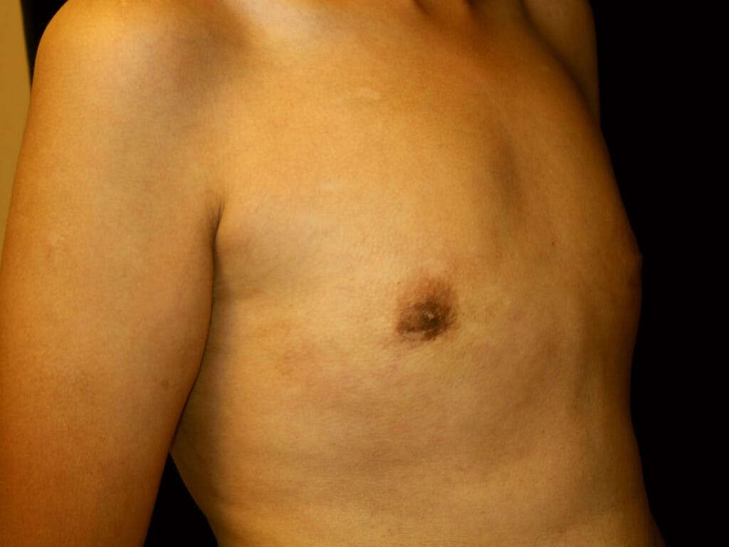 FTM Surgery Gallery - Patient 39245502 - Image 4