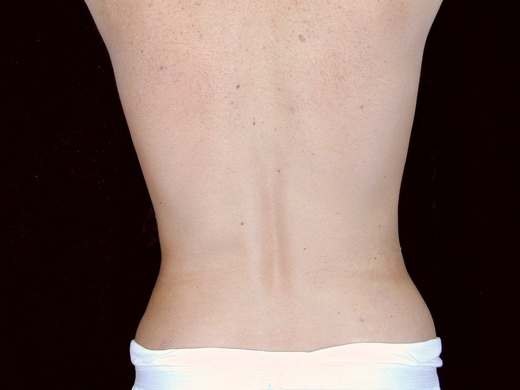 Liposuction Gallery - Patient 39245500 - Image 6