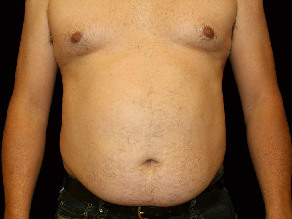 Liposuction Gallery - Patient 39245505 - Image 1
