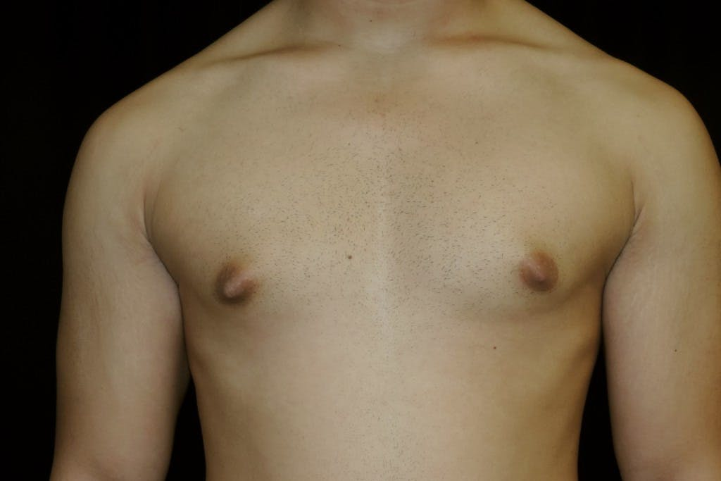 Gynecomastia Gallery - Patient 39245504 - Image 1