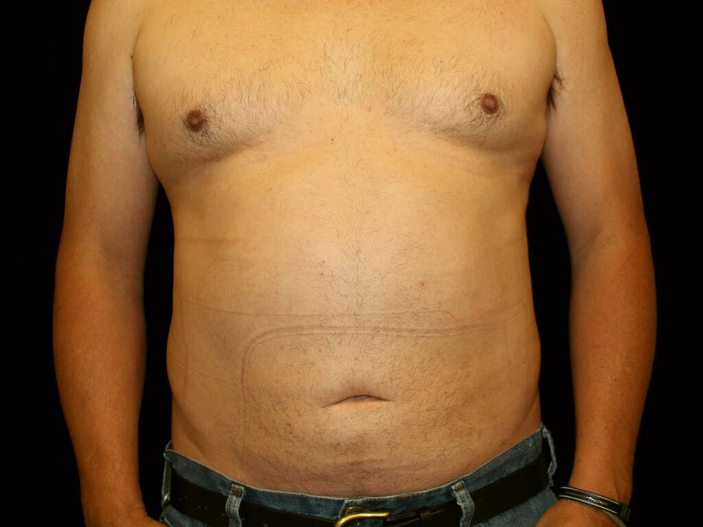 Liposuction Gallery - Patient 39245505 - Image 2