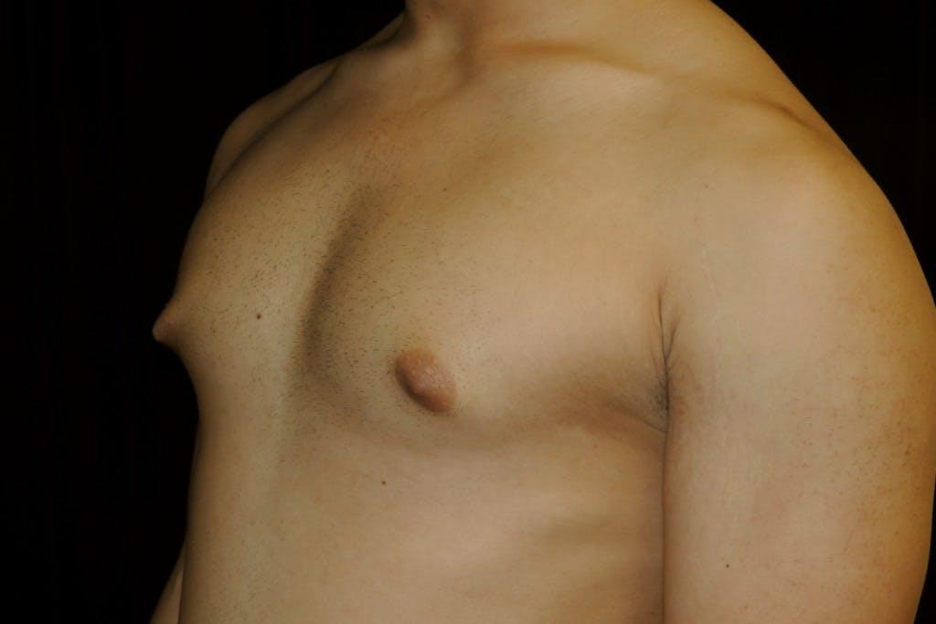 Gynecomastia Gallery - Patient 39245504 - Image 3