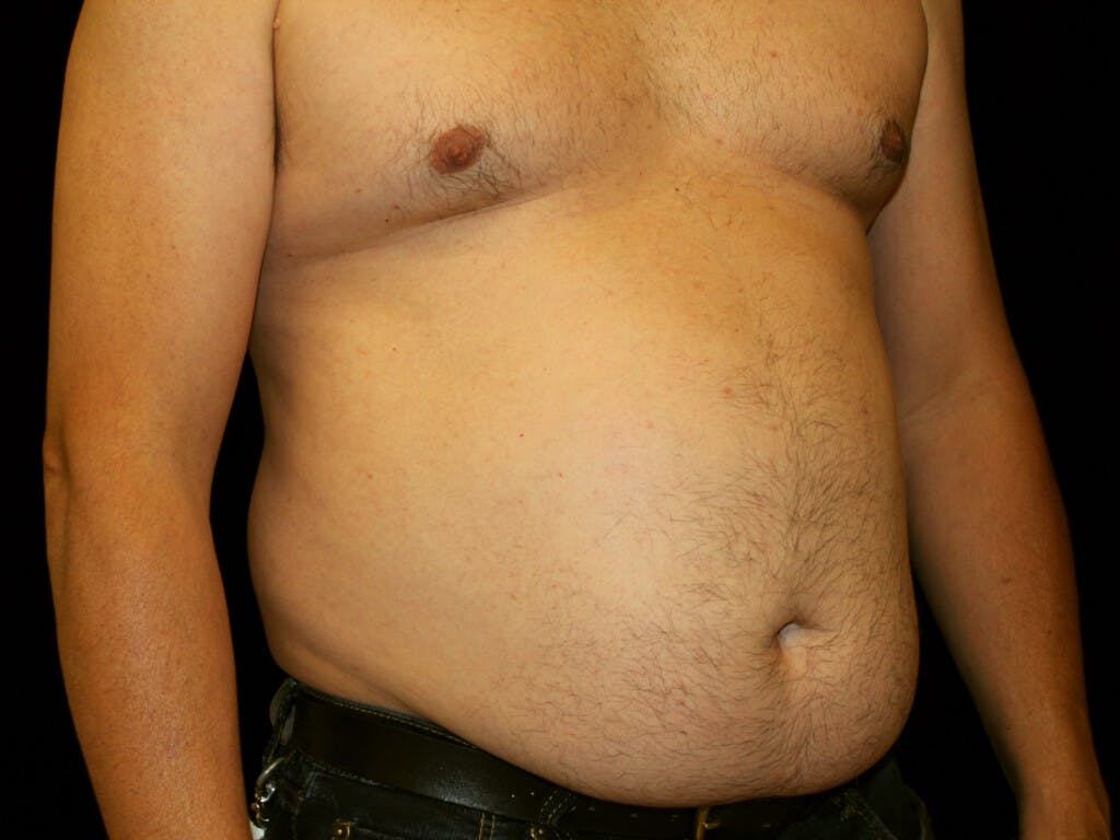 Liposuction Gallery - Patient 39245505 - Image 3