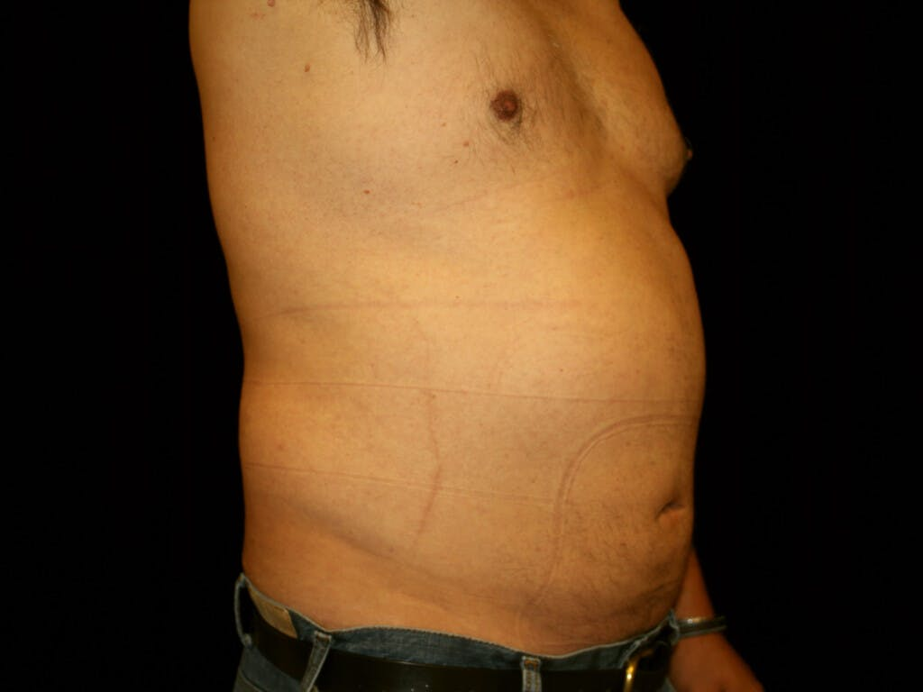 Liposuction Gallery - Patient 39245505 - Image 4