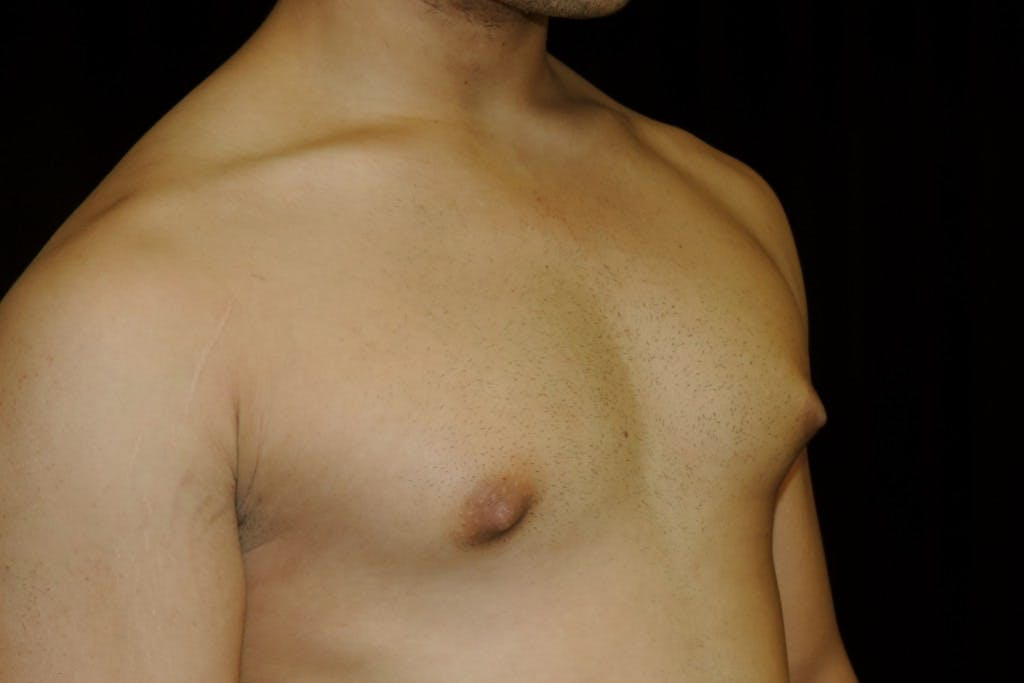Gynecomastia Gallery - Patient 39245504 - Image 5
