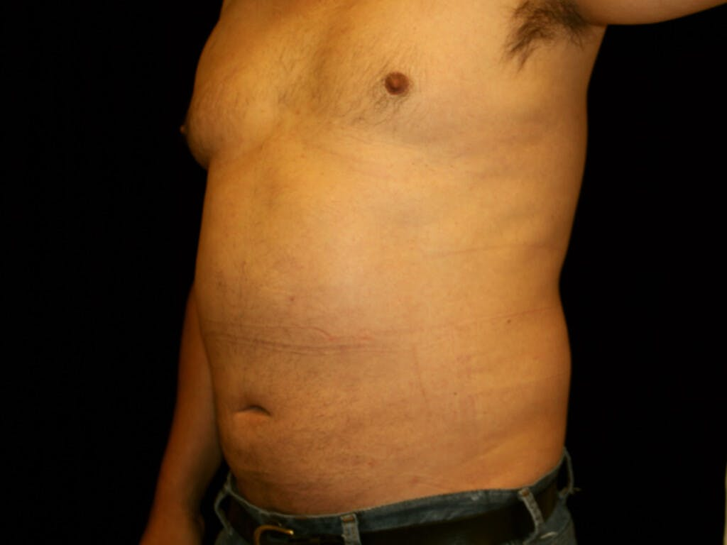 Liposuction Gallery - Patient 39245505 - Image 6