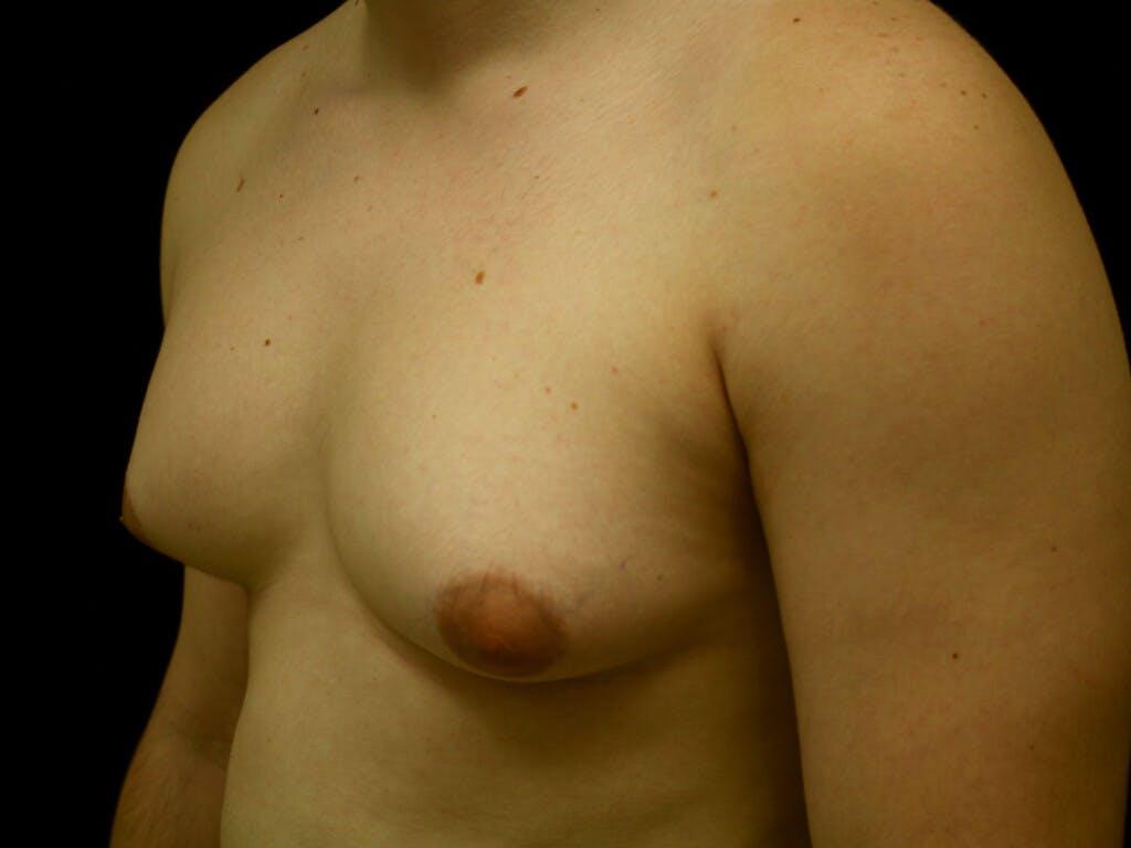 FTM Surgery Gallery - Patient 39245506 - Image 5