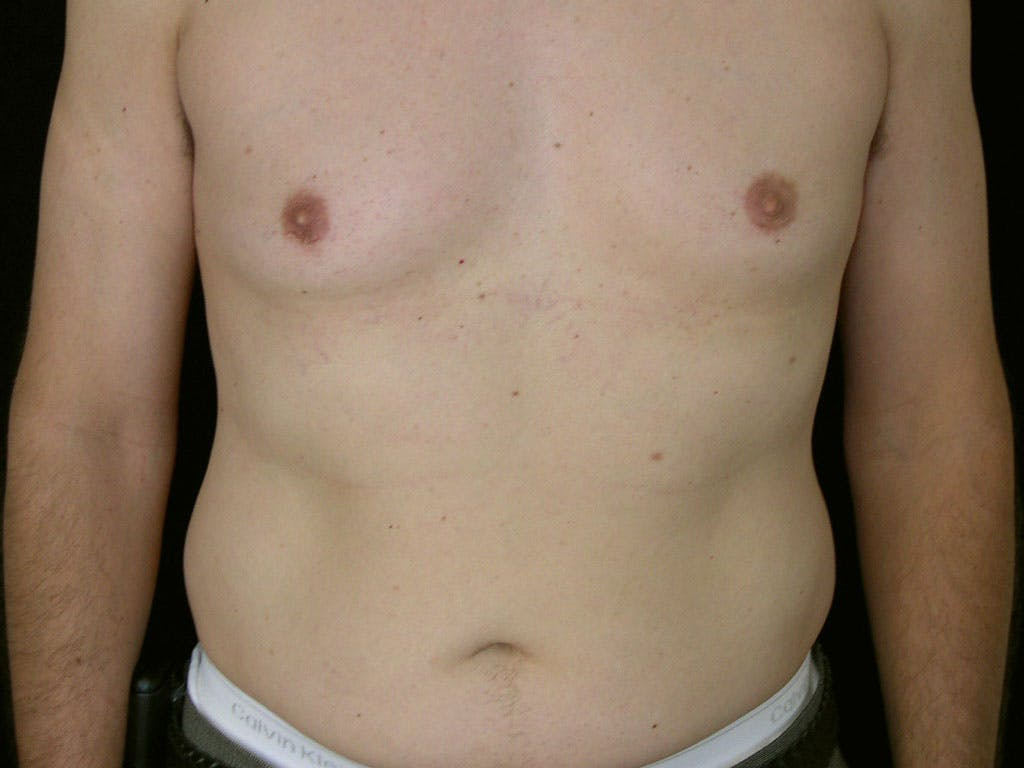 Liposuction Gallery - Patient 39245509 - Image 1