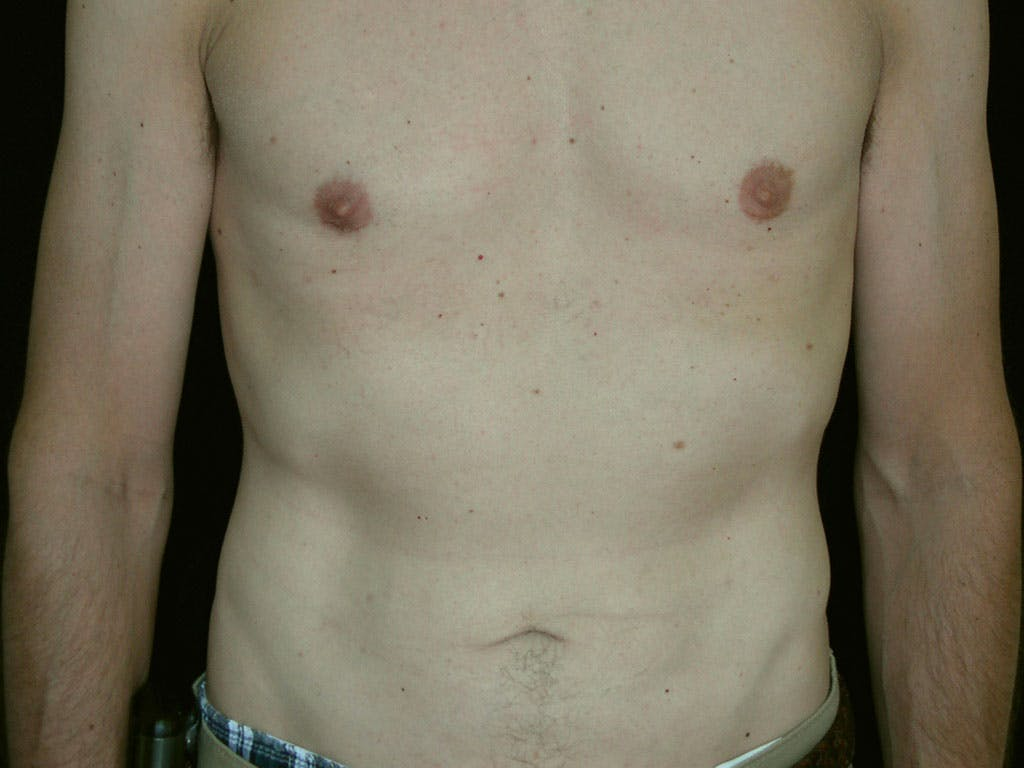 Liposuction Gallery - Patient 39245509 - Image 2