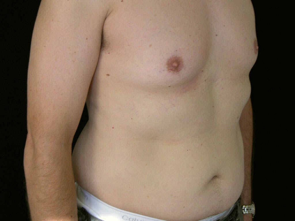 Liposuction Gallery - Patient 39245509 - Image 3