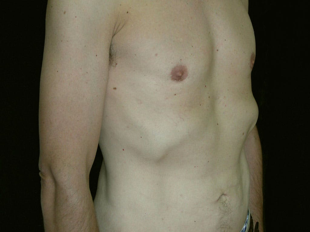 Liposuction Gallery - Patient 39245509 - Image 4