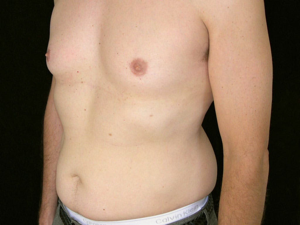 Liposuction Gallery - Patient 39245509 - Image 5
