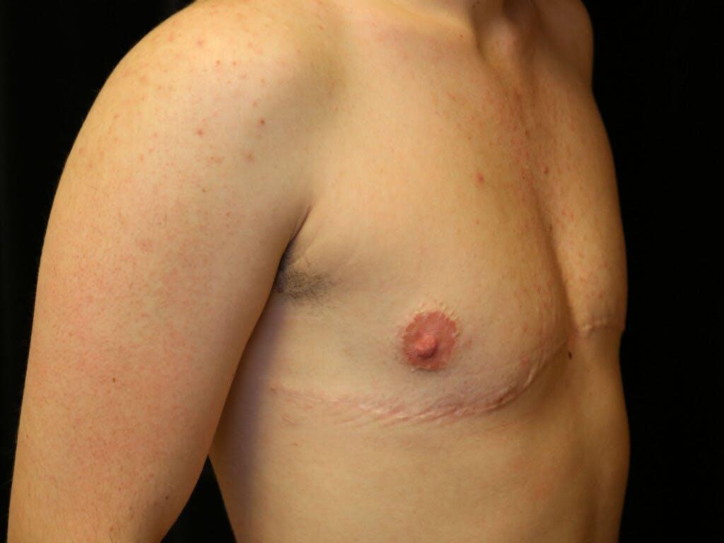 FTM Surgery Gallery - Patient 39245510 - Image 4