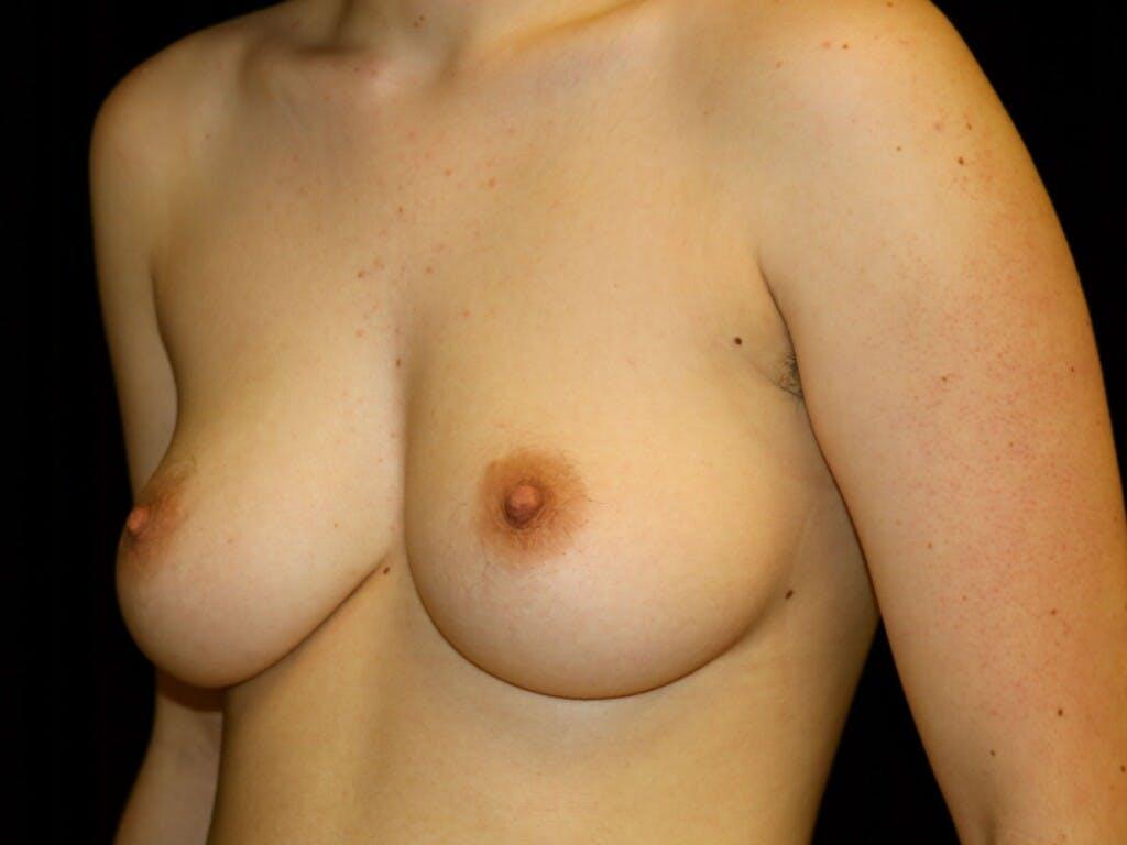 FTM Surgery Gallery - Patient 39245510 - Image 5