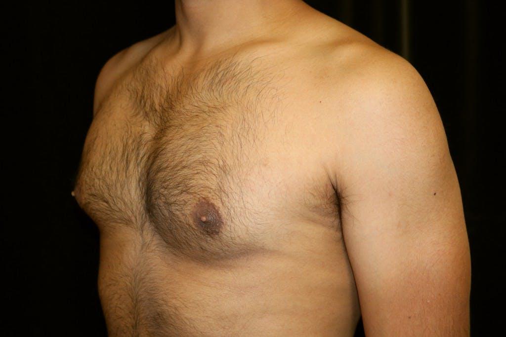 Gynecomastia Gallery - Patient 39245511 - Image 3