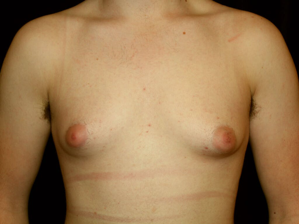 FTM Surgery Gallery - Patient 39245516 - Image 1