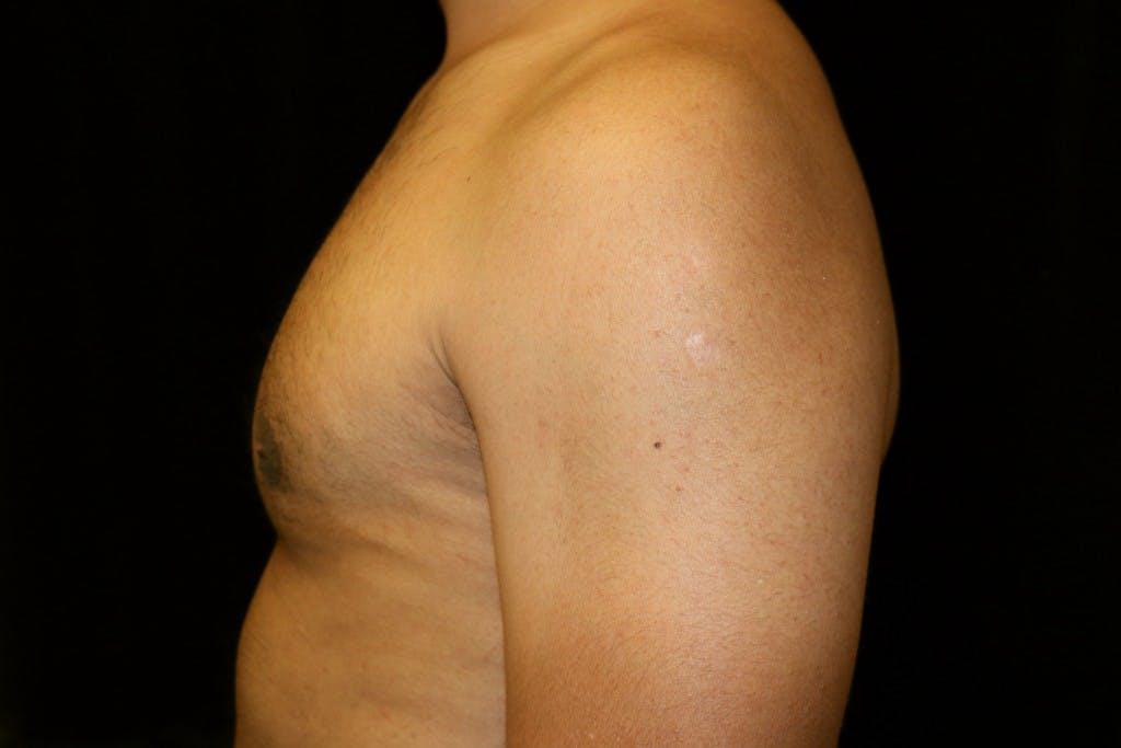 Gynecomastia Gallery - Patient 39245511 - Image 6