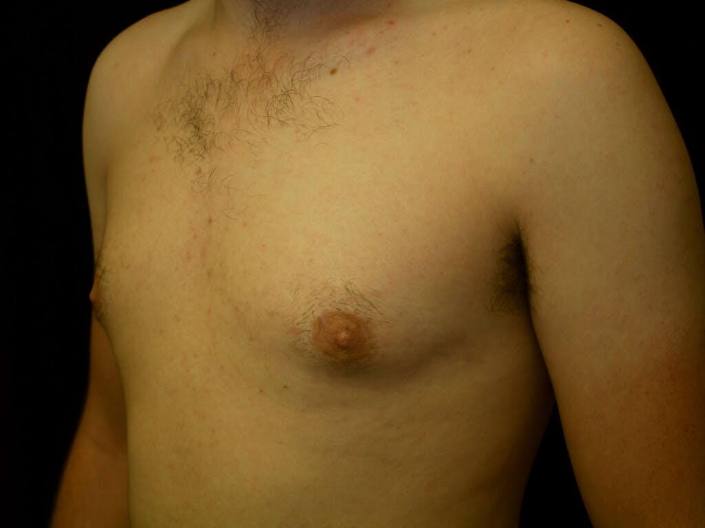 FTM Surgery Gallery - Patient 39245516 - Image 4
