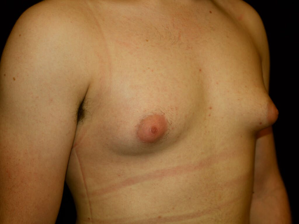 FTM Surgery Gallery - Patient 39245516 - Image 5