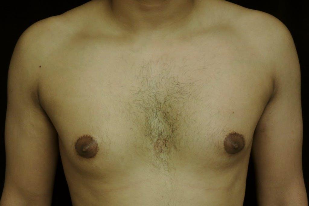 Gynecomastia Gallery - Patient 39245525 - Image 1