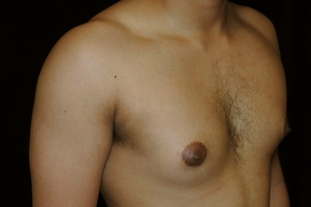 Gynecomastia Gallery - Patient 39245525 - Image 3
