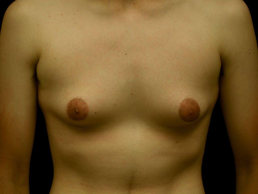 FTM Surgery Gallery - Patient 39245526 - Image 1
