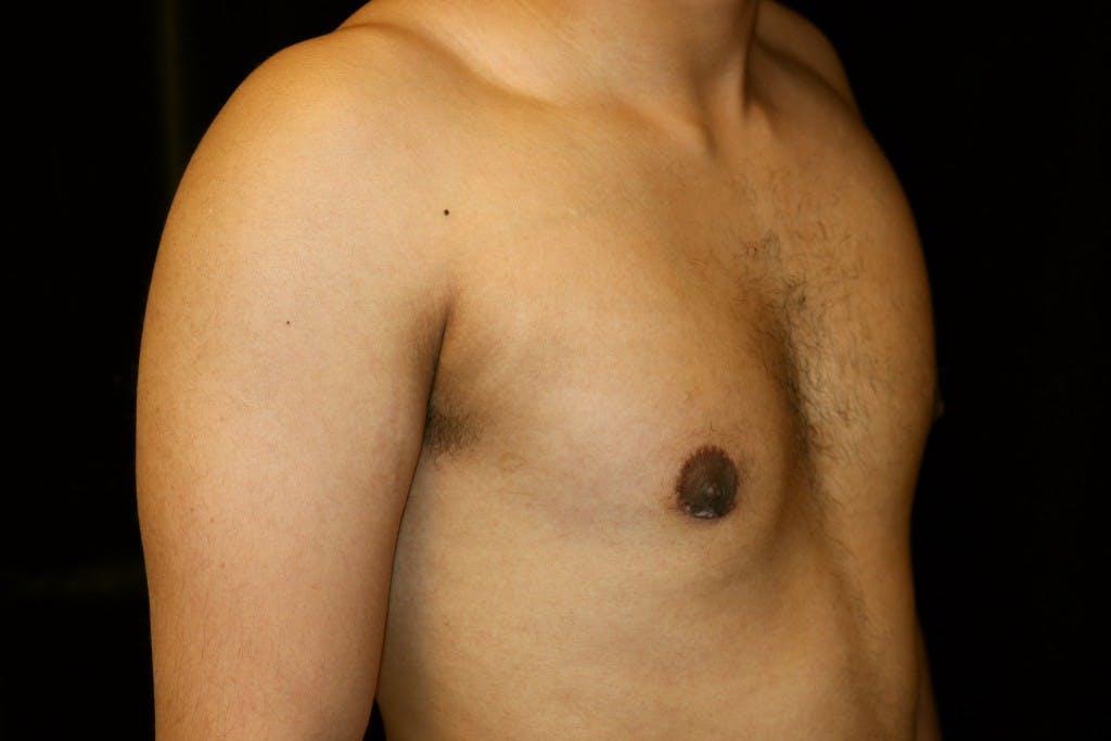 Gynecomastia Gallery - Patient 39245525 - Image 4