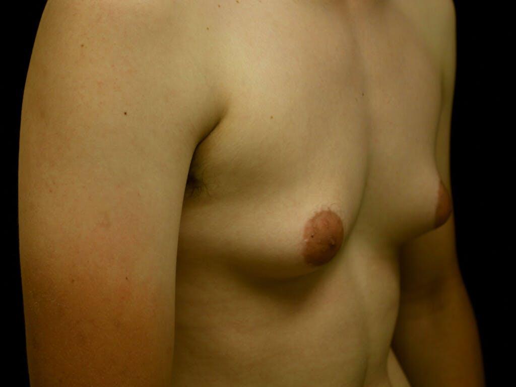 FTM Surgery Gallery - Patient 39245526 - Image 3