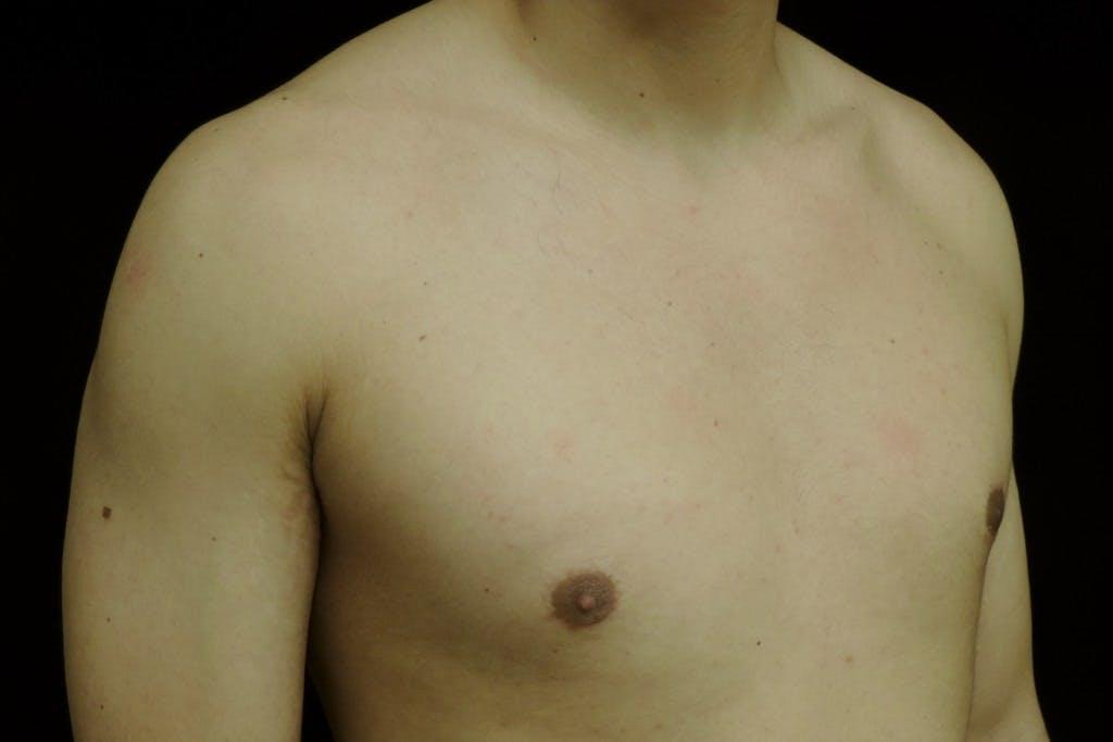 Gynecomastia Gallery - Patient 39245527 - Image 4