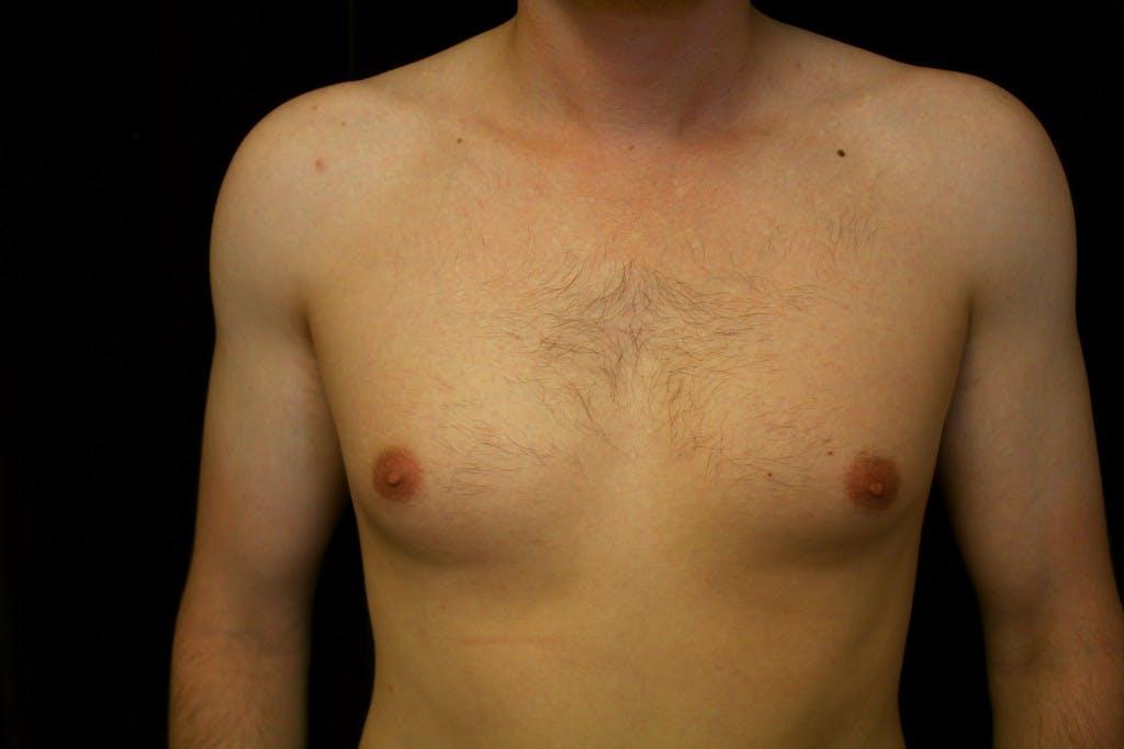 Gynecomastia Gallery - Patient 39245528 - Image 1
