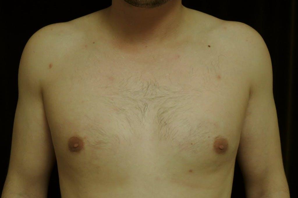 Gynecomastia Gallery - Patient 39245528 - Image 2