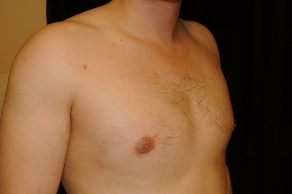 Gynecomastia Gallery - Patient 39245528 - Image 4