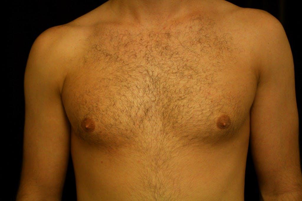 Gynecomastia Gallery - Patient 39245529 - Image 1
