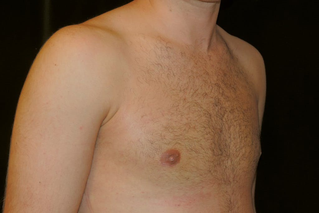 Gynecomastia Gallery - Patient 39245529 - Image 4