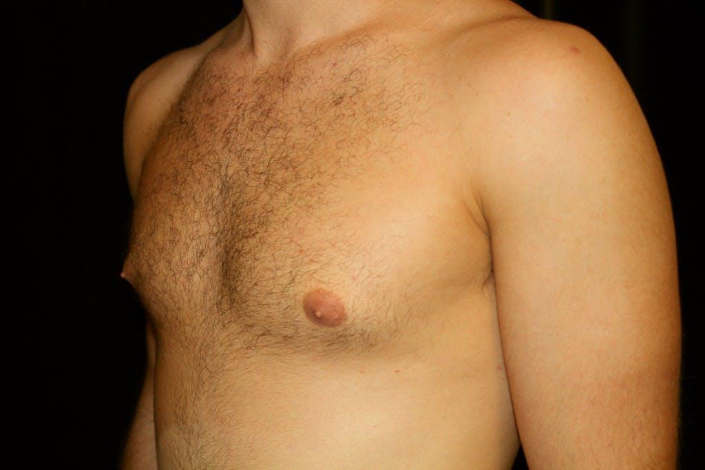 Gynecomastia Gallery - Patient 39245529 - Image 5