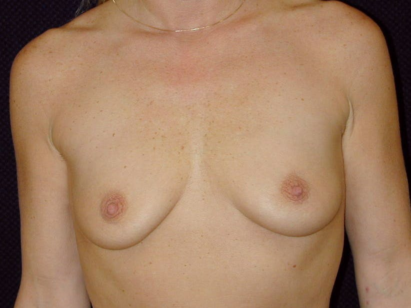 Breast Augmentation Gallery - Patient 39245531 - Image 1