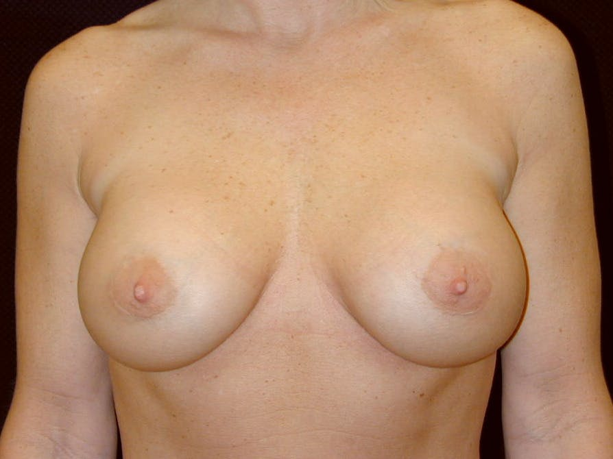 Breast Augmentation Gallery - Patient 39245531 - Image 2