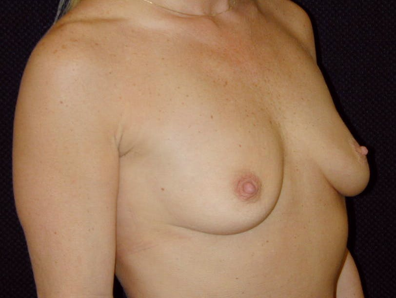 Breast Augmentation Gallery - Patient 39245531 - Image 3