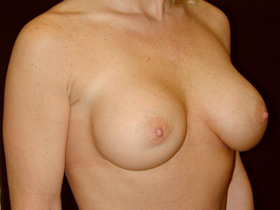 Breast Augmentation Gallery - Patient 39245531 - Image 4