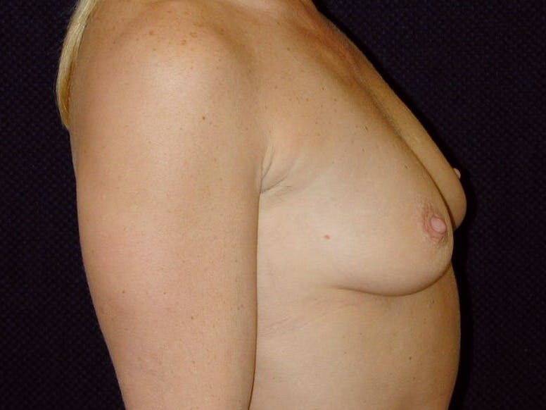Breast Augmentation Gallery - Patient 39245531 - Image 5