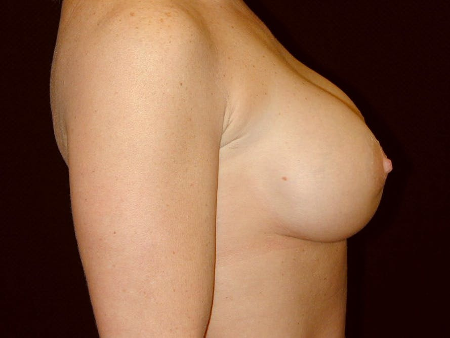 Breast Augmentation Gallery - Patient 39245531 - Image 6