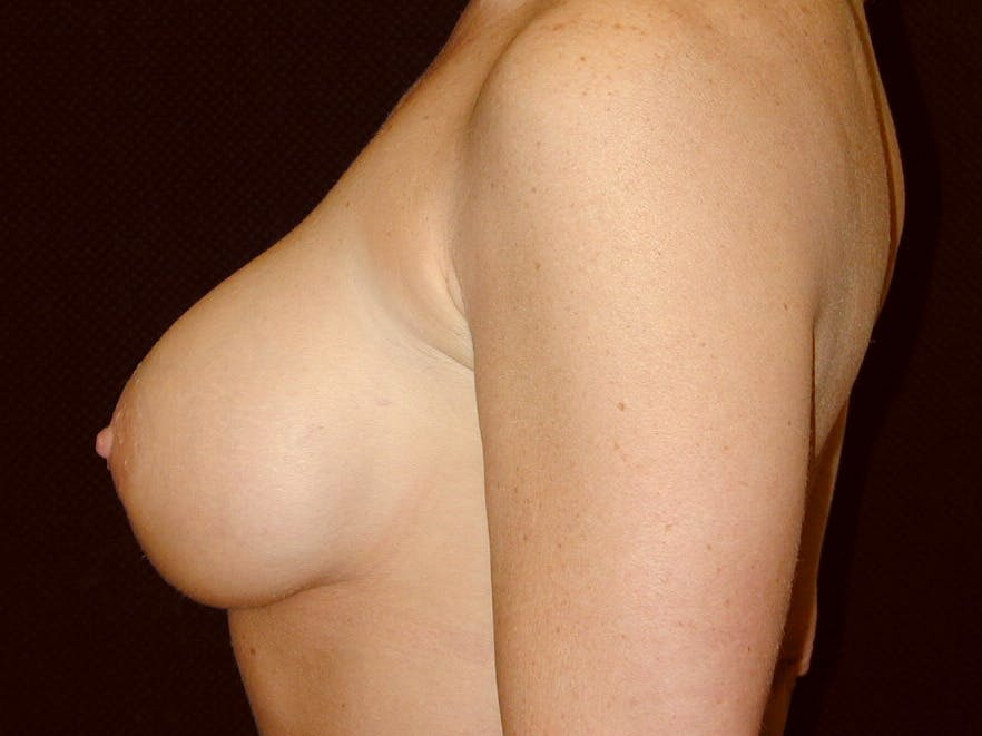 Breast Augmentation Gallery - Patient 39245531 - Image 8