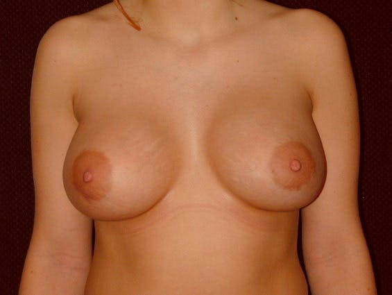 Breast Augmentation Gallery - Patient 39245534 - Image 2
