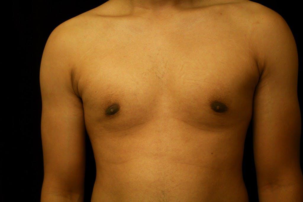 Gynecomastia Gallery - Patient 39245533 - Image 2