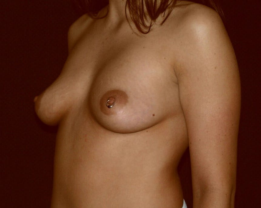 Breast Augmentation Gallery - Patient 39245534 - Image 5